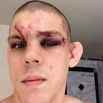 Lauzon two days after the Miller fight. Photo via Joe Lauzon.