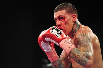 Bloody Gabriel Rosado presses on