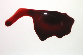 Blood_pool_display_image