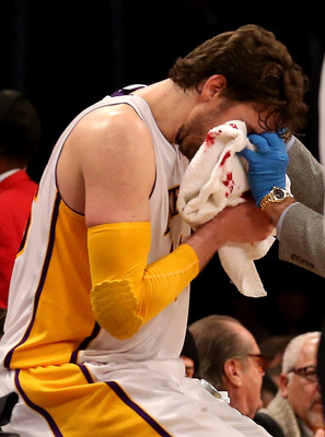 Stop the bleeding and trade Pau.