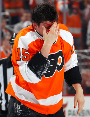 Tye McGinn's career was put on hold after breaking his orbital bone in a fight.