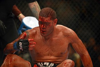 Antonio Silva after Silva-Velasquez 1