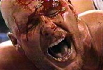 Stone Cold bleeds out