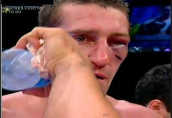 Senchenko's face after the TKO