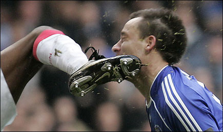 John Terry and the 10 Worst Kicks to the Face in Soccer