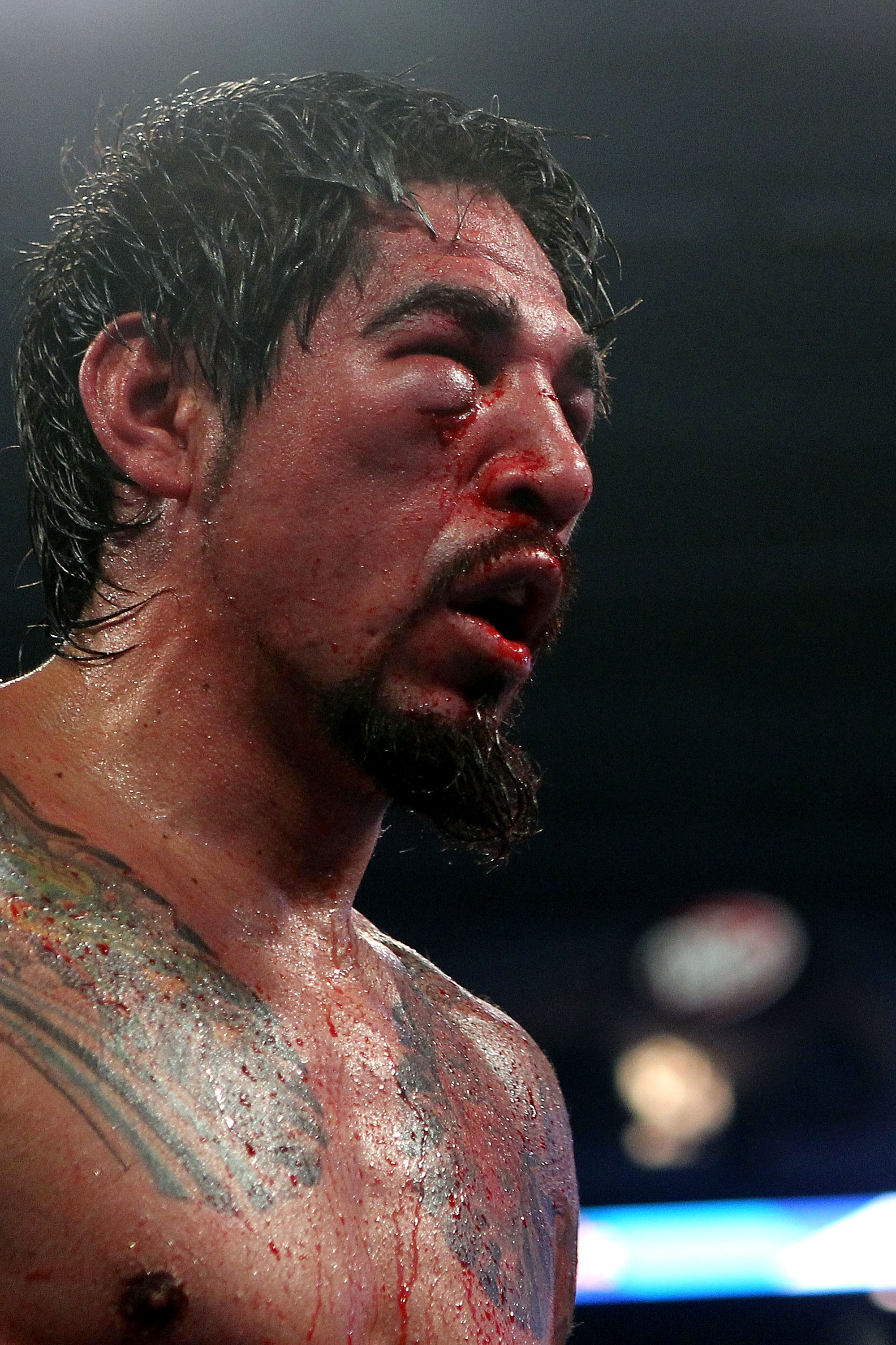 ARLINGTON, TX - NOVEMBER 13:  A detail of the cut on the right eye of Antonio Margarito (black trunks) of Mexico is seen as he fights against Manny Pacquiao (white trunks) of the Philippines during their WBC World Super Welterweight Title bout at Cowboys
