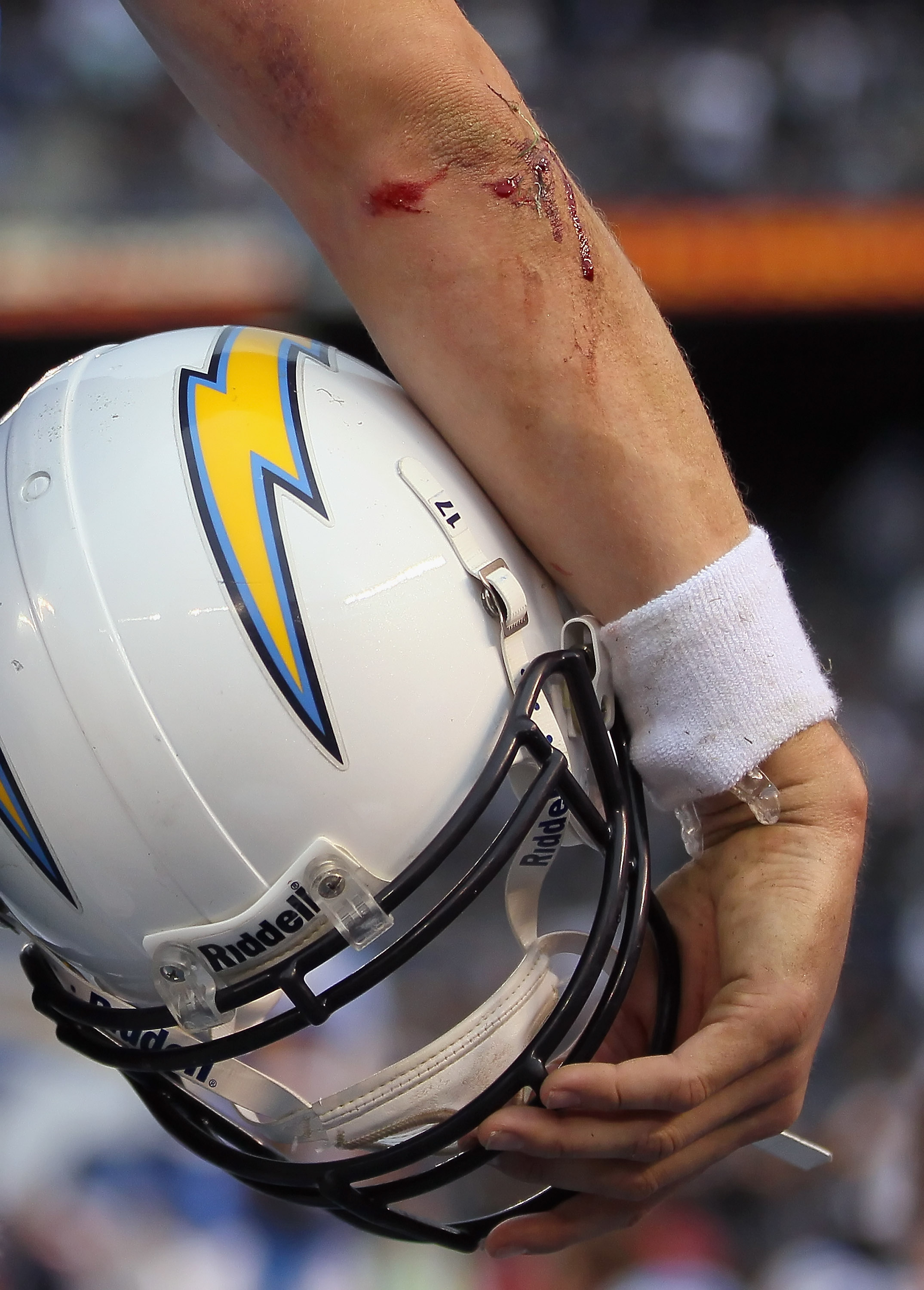 SAN DIEGO - DECEMBER 05:  The bloody elbow of quarterback Philip Rivers #17 of the San Diego Chargers is seen in the closing minutes of the fourth quarter against the Oakland Raiders at Qualcomm Stadium on December 5, 2010 in San Diego, California. The Ra